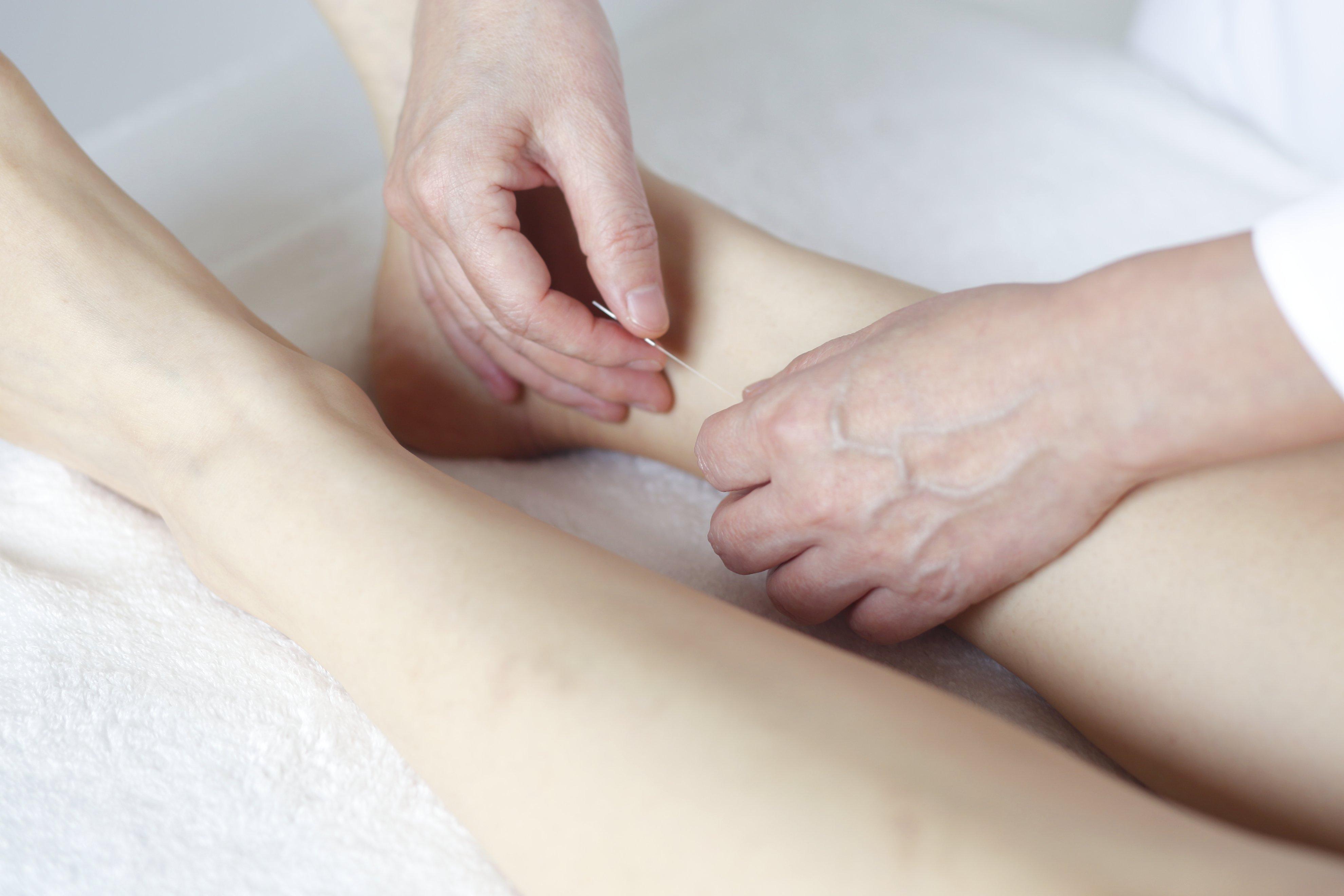 ぎっくり腰の治療例