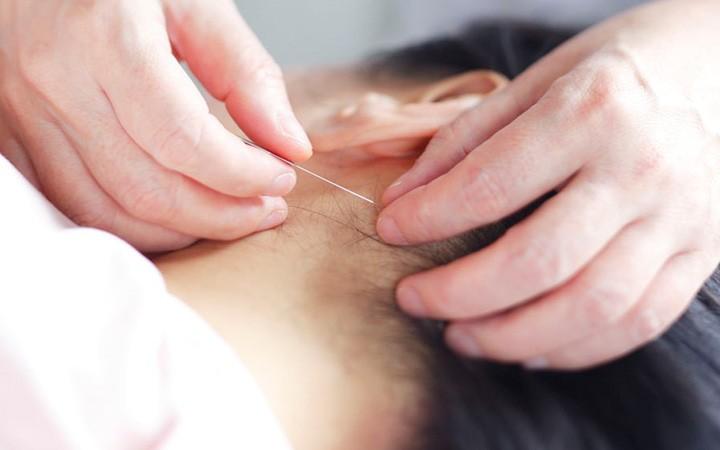 三叉神経痛の治療例