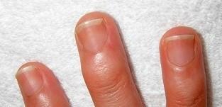 爪甲剥離症 治療