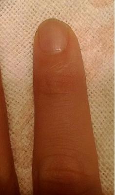 爪甲剥離症 鍼灸